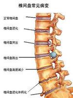 罗氏正骨是如何根治椎间盘突出和骨质增生